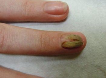 uszkodzenia paznokcia i macierzy