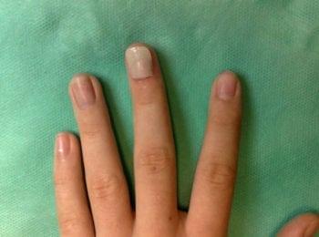 uszkodzenia paznokcia i macierzy - po leczeniu w Centrum Stóp