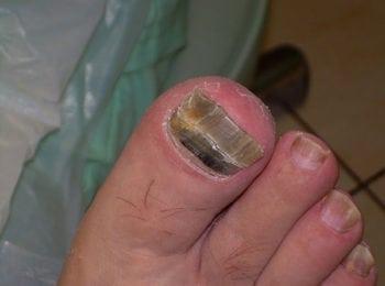 Przed rozpoczęciem leczenia grzybicy paznokci