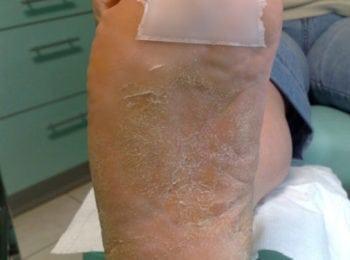 Przed rozpoczęciem leczenia grzybicy stóp