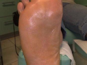 Po zakończeniu leczenia grzybicy stóp- Centrum Stopy