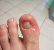 Wrastające paznokcie w trakcie leczenia