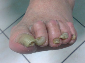 Wrastające paznokcie - Centrum Stopy