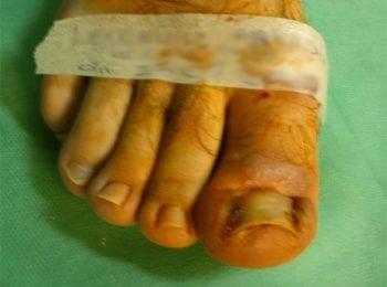 Przed rozpoczęciem leczenia wrastającego paznokcia