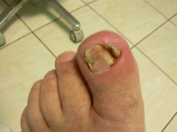 Wrastający paznokieć w trakcie leczenia