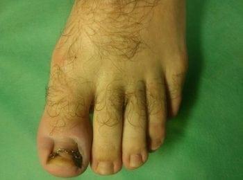 W trakcie leczenia wrastającego paznokcia