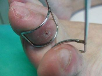 Odcisk na palcu