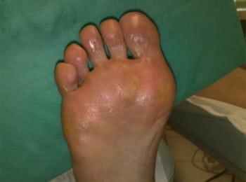 Prawa stopa po pedicure