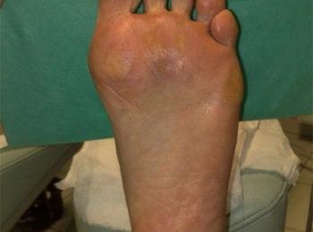 Stopa bezpośrednio po zabiegu pedicure