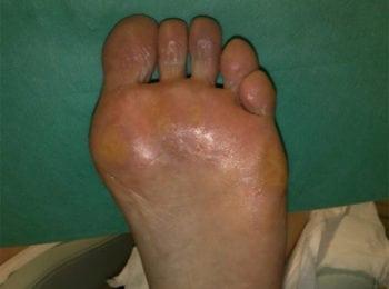 Lewa stopa po pedicure
