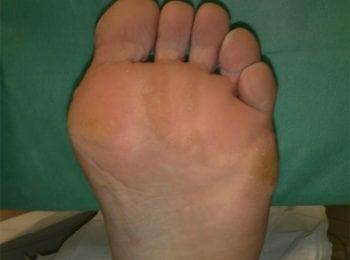 Lewa stopa przed zabiegiem pedicure