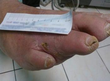 Podczas leczenia stopy