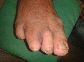 Po leczeniu stopy cukrzycowej