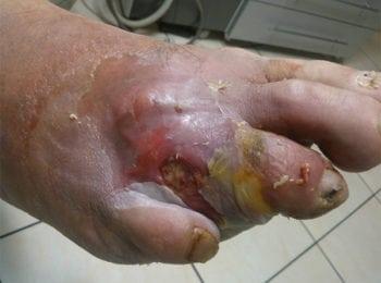 Obrzęk stopy cukrzycowej