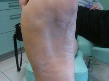 opracowania skóry stóp na frezarce