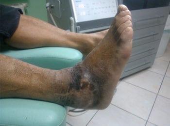 Noga po zakończeniu leczenia i pielęgnacji