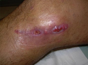 rana - uraz kolana, pielęgnacja