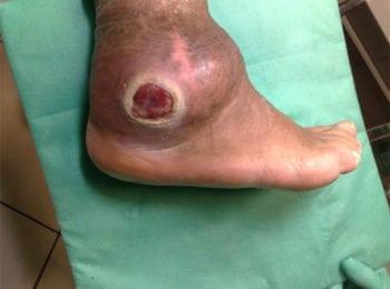 Leczenie i pięlęgnacja rany