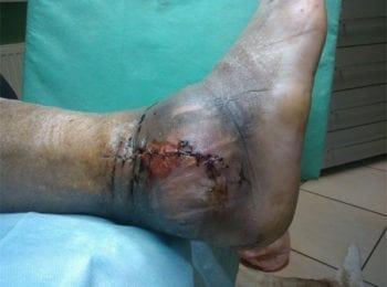 Stopa po operacji stawu