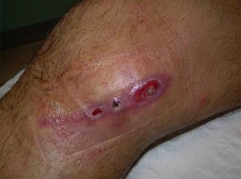 Pielęgnacja rany pooperacyjnej