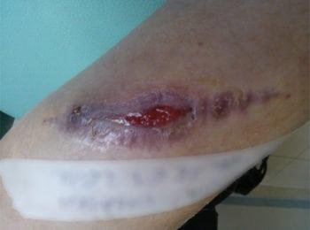 Gojenie się rany po usunięciu znamienia