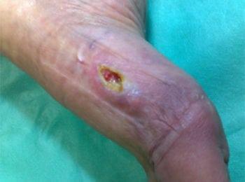 Problem z gojeniem rany