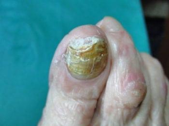 Uszkodzona płytka paznokcia- Centrum Stopy