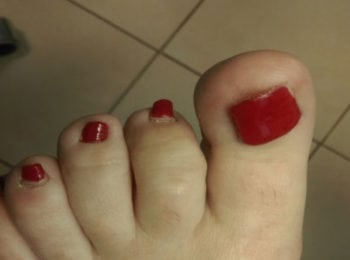 Odklejenie płytki paznokia po uderzeniu - po leczeniu