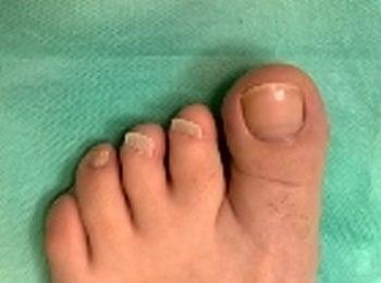 niewykształconymi paznokciami na skutek wady genetycznej palców - po leczeniu w Centrum Stopy