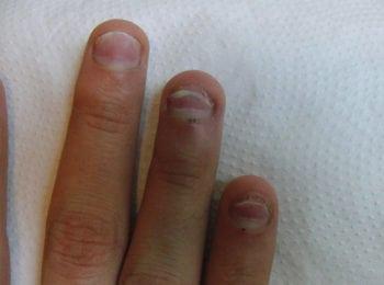 rozwarstwionymi paznokciami i częściowo odklejanymi od łożyska