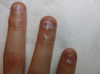 rozwarstwionymi paznokciami i częściowo odklejanymi od łożyska - po leczeniu