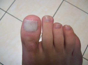 Po zakończeniu leczenia płytki paznokcia