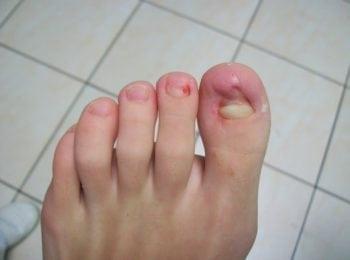 W trakcie leczenia płytki paznokcia