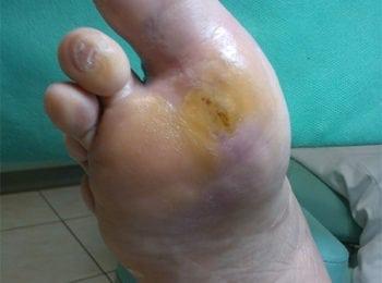 Efekt 14 miesięcy leczenia stopy cukrzycowej