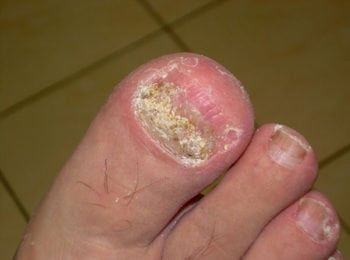 W trakcie leczenia grzybicy paznokci