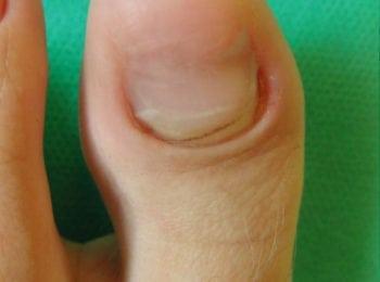 Po zakończeniu leczenia grzybicy paznokci- Centrum Stopy