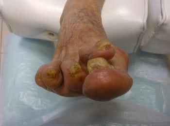 Leczenie stopy