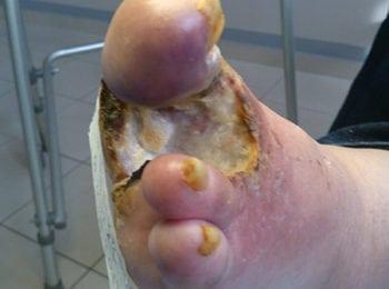Rana po usunięciu palca