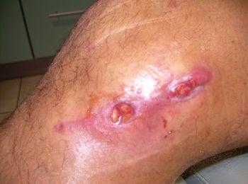 Leczenie rany na nodze