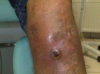 rana na kolanie