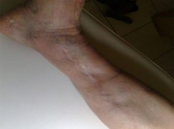 Efekt po zakończeniu leczenia