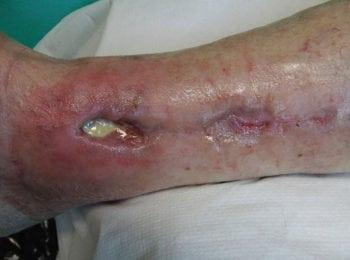 Leczenie rany z martwicą