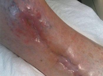 Pielęgnacja rany