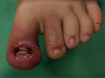 Wrastające paznokcie - problem