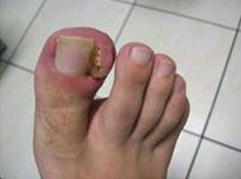 Wrastające paznokcie -przed leczeniem