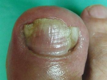 Wrastający paznokieć po leczeniu