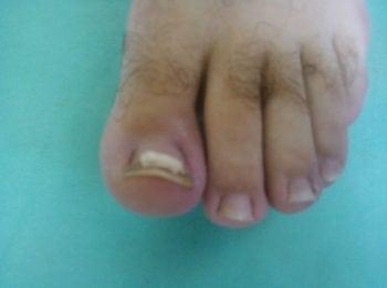 Po zakończeniu leczenia wrastającego paznokcia